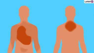 Chest Pain: Are You Getting A Heart Attack Or Is It Something Else?
