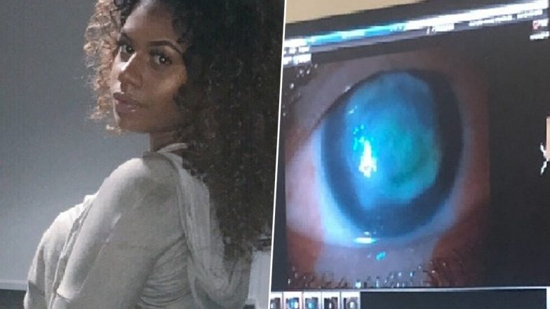 British Student Gets Hit by a Wave While Swimming With Contact Lenses, Loses Eyesight Completely