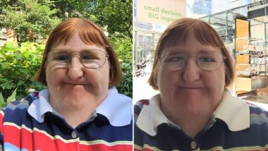 Disabled Blogger Melissa Blake Posts Defiant Pictures After Trolls Told Her She Was 'Too Ugly for Selfies' (Check Viral Thread)