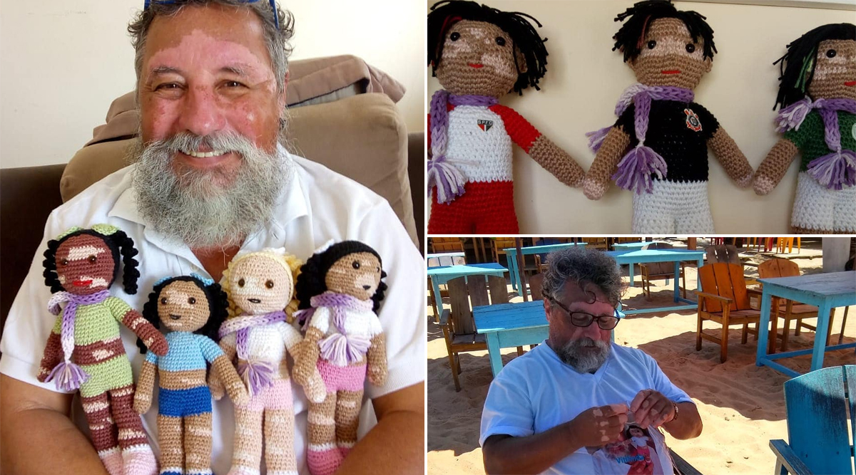 Vitiligo Dolls Sewn by Brazilian Grandpa Suffering From the Skin Disease Give Comfort to Kids With the Condition (View Viral Pics)