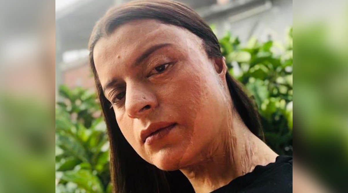 Rangoli Chandel Recalls Her Acid Attack Ordeal
