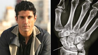 Farhan Akhtar Suffers Hairline Fracture While Shooting for Toofan, Actor Shares Proof on Instagram (View Pic)