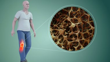 World Osteoporosis Day 2019: History, Theme and Significance of The Dedicated To The Bone Disease