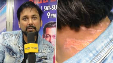 Bigg Boss 13 Shocker! Siddhartha Dey Shows Burn Injuries He Sustained after Bleach Was Poured on Him (Watch Video)