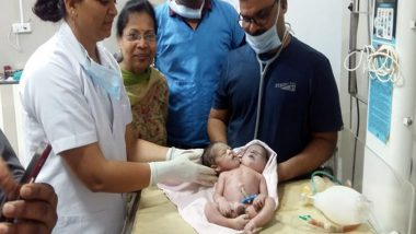Boy Born With 2 Heads and 3 Hands in Madhya Pradesh; What is Structural Birth Defect? Know Its Causes