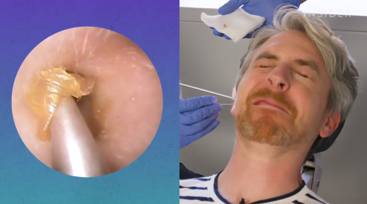 How to Remove Earwax? This Viral Video Is Disgusting and Satisfying in Equal Parts