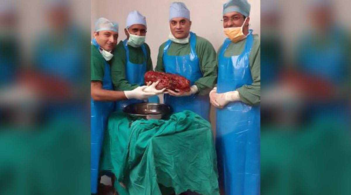 World's 3rd Heaviest Kidney Removed by Delhi Doctors Who Plan to Enter it In Guinness Book of World Records