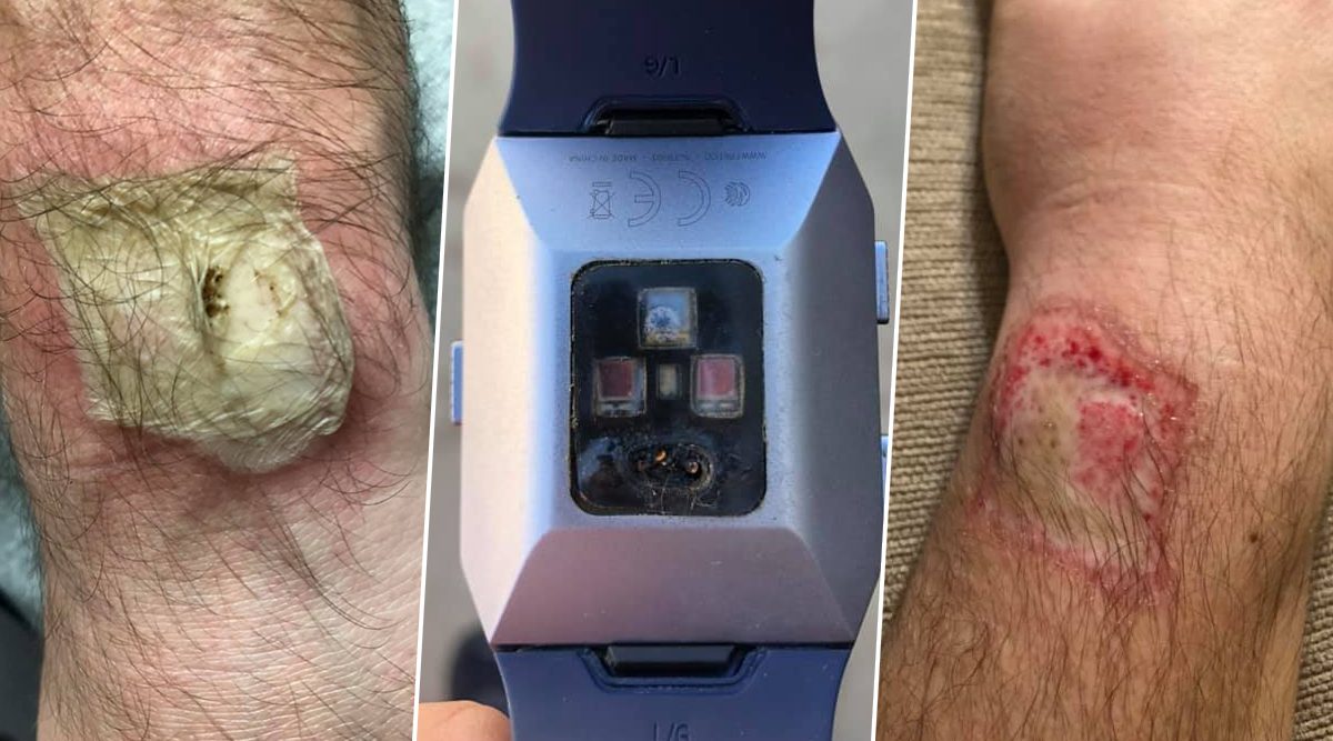 Fitbit Blasts on a Man's Hand and Allegedly Causes 'Third-Degree Burns' and Nerve Damage (View Graphic Images)