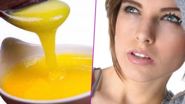 Home Remedy of the Week: Ghee For Dry Skin & Chapped Lips; How Clarified Butter Can Moisturise Your Skin This Winter (Watch Video)