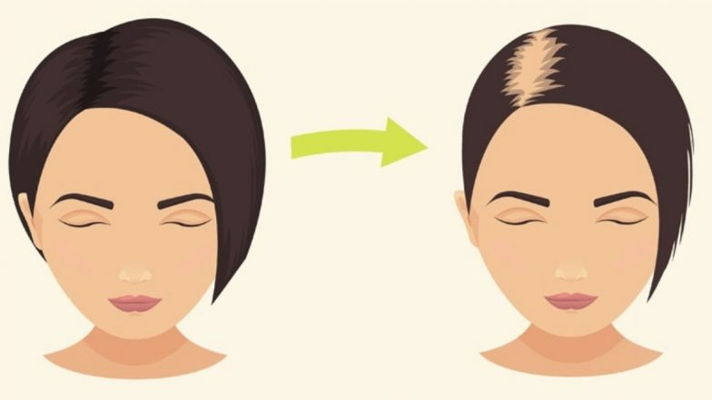 Hair Loss Causes: Is Your Hair Fall Normal? How Much Shedding Is OK and When Should It Be a Concern