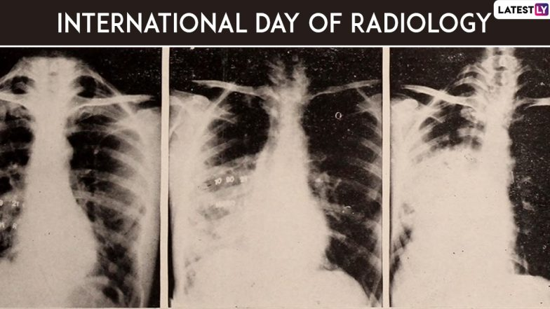 International Day of Radiology 2019: History, Theme and Significance of the Day Dedicated to Medical Imaging