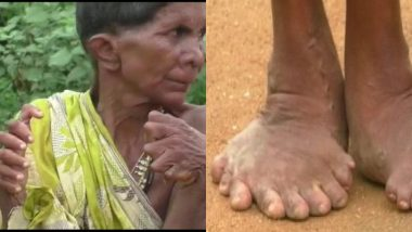 Odisha Woman Born With 20 Toes and 12 Fingers is Branded a Witch (View Pics)