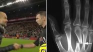 Michael Oliver Gets a Broken Hand After Pep Guardiola's Sarcastic Handshake After Liverpool vs Manchester City, EPL 2019?