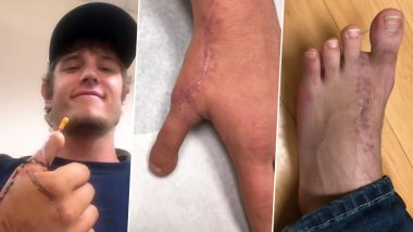 US Man Lost His Thumb While Making Gift for His Girlfriend; Surgeons Replace It With His Toe