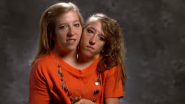 World's Most Conjoined Twins How Driving And Have Separate Careers! (Watch Video)
