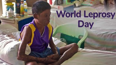 World Leprosy Day 2020 Date: History and Significance of the Day Dedicated to Hansen's Disease