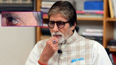 Amitabh Bachchan Visits Doctor Due to a Black Spot in His Left Eye, Pens an Emotional Post on Motherhood (Read Tweets)