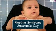 Moebius Syndrome Awareness Day 2020: Date and Significance of the Day Dedicated to the Rare Neurological Condition