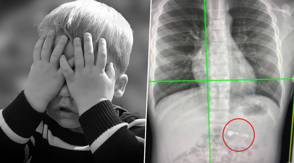 7-YO Boy Swallows AirPod He Received as Christmas Gift, Docs Say Let it Pass Through His System