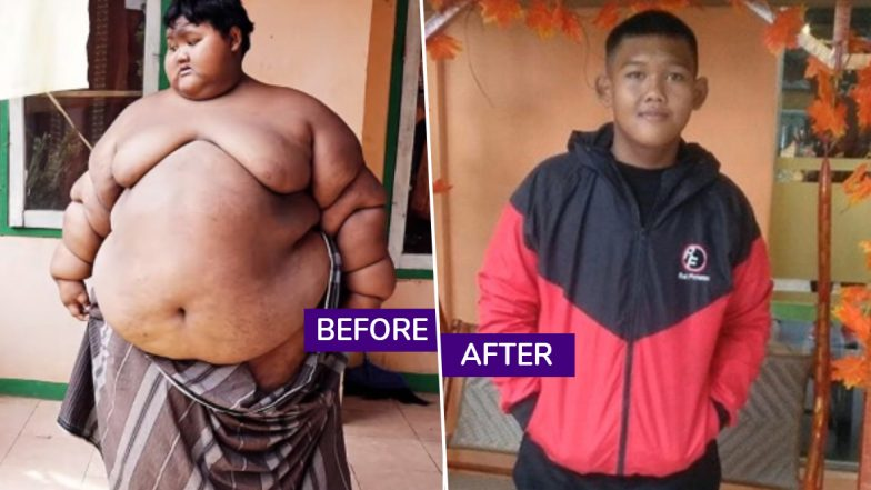 Indonesia's Fattest Teenager Arya Permana Loses 110kg, Amazing Body Transformation With Before And After Pictures Go Viral
