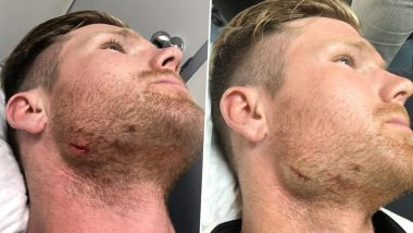 Jimmy Neesham Injures Jaw During India A vs New Zealand A Match, Kiwi All-Rounder Shares Picture With a Hillarious Caption