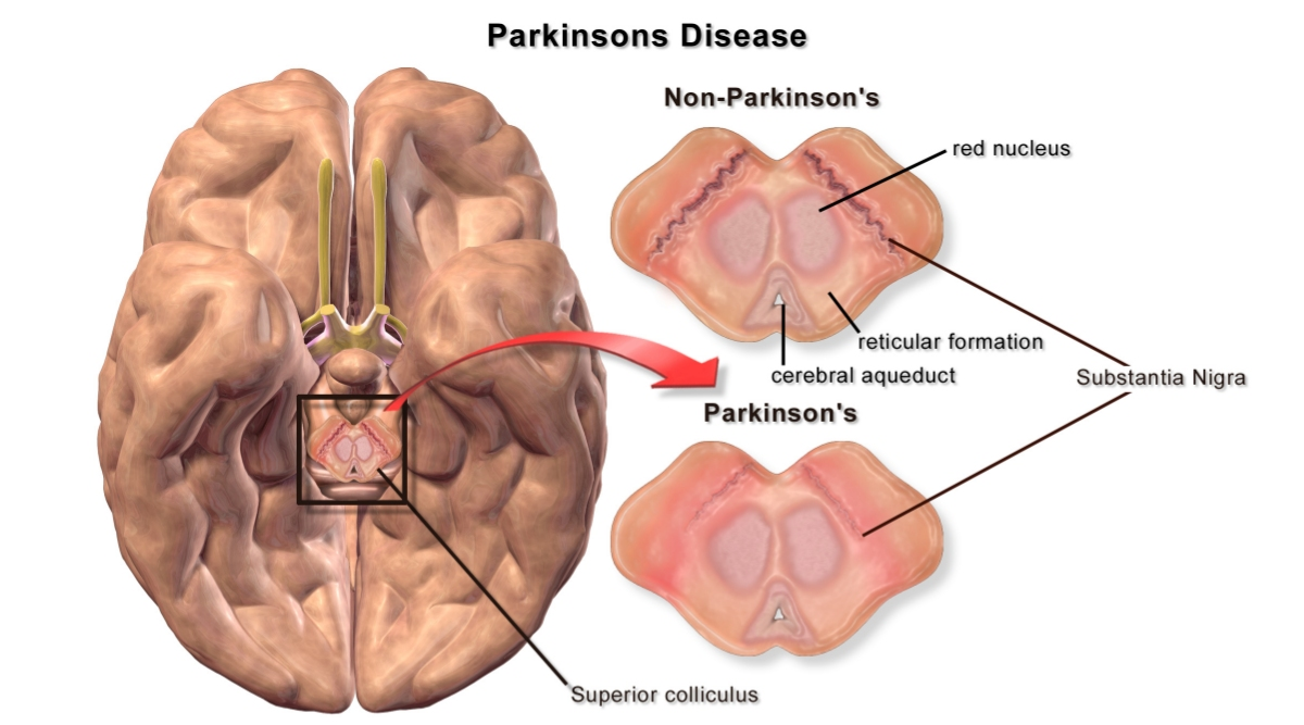 Parkinson's Disease Symptoms and Signs That Must Not Be Ignored