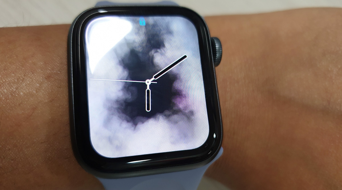 Apple Watch Saves A Life of Teen Athlete Named Skylar Joslin By Notiftying Him His Abnormal Rapid Heart Rate
