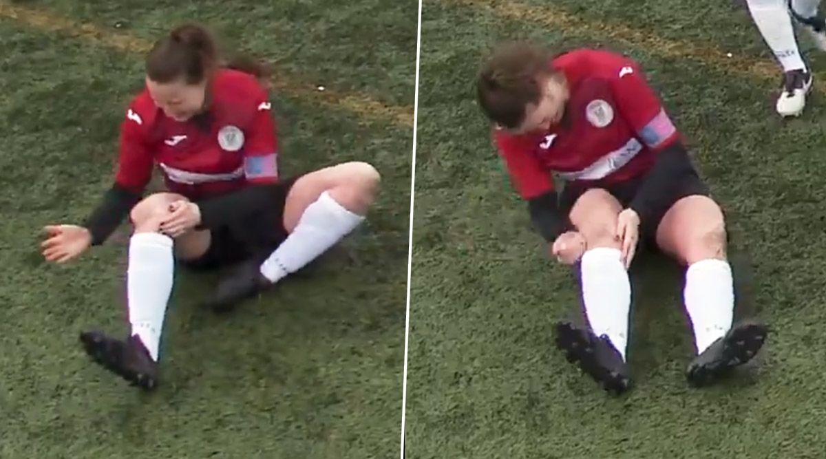 Scottish Footballer Jane O'Toole Hammers Dislocated Knee Back In Place and Continues Playing (Watch Video)