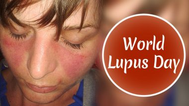 World Lupus Day 2020: What Is Lupus? Know More About the Causes and Symptoms of the Autoimmune Disease