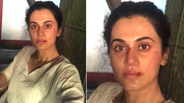 Taapsee Pannu Has a Foolproof Plan That Can Help Kids Skip School; It Involves Gruesome Bruises and a Throwback Picture (View Post)