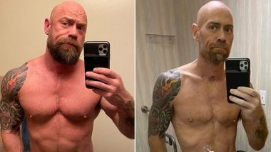 Mike Schultz, Nurse and COVID-19 Survivor Shares Dramatic Before and After Pics to Show How Six Weeks Fighting Coronavirus Ravaged His Body