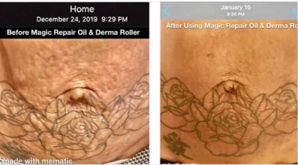 'How to Get Rid of Stretch Marks & Scars Naturally, Seriously'