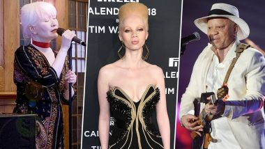 International Albinism Awareness Day 2020: Famous Albino Personalities Who Didn't Let Their Skin Disorder Hamper Their Big Dreams