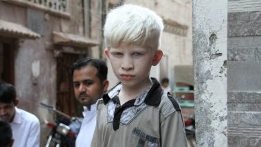 International Albinism Awareness Day 2020 Date & Theme: Know the History and Significance of the Day to Celebrate the Human Rights of Persons With Albinism