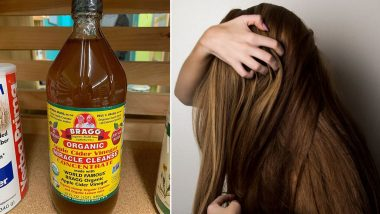 Home Remedy of the Week: How Apple Cider Vinegar Can Help Treat Dandruff And Itchy Scalp (Watch Video)
