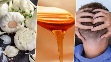 Home Remedy of the Week: How Garlic Honey Mix Can Help Treat Dandruff and Itchy Scalp (Watch Video)