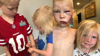 Remember Bridger Walker Who Saved His Little Sister From Dog Attack? Brother-Sister Duo From US Celebrated Raksha Bandhan! (View Pic)
