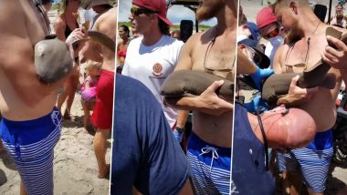 Baby Shark Latches Onto Man's Arm at Jensen Beach in Florida and Refuses to Leave (Watch Video)