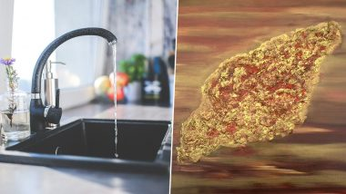 Brain-Eating Amoeba Resurfaces in Texas' Tap Water! Know Rare Cases of Naegleria Fowleri Infection That Caused Deaths in Recent Times