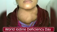 World Iodine Deficiency Day 2020: Causes, Symptoms & Treatment of the Deficiency That May Cause Goiter, Thyroid Problems and Even Mental Disabilities