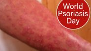 World Psoriasis Day 2020: From Genital to Scalp Psoriasis, Types of The Autoimmune Disease That you Must Know Of