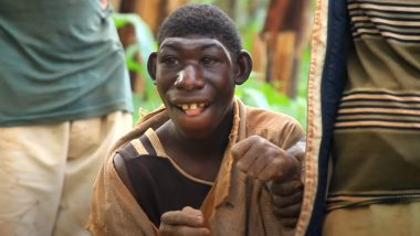 Zanziman Ellie, 'Real Life Mowgli'  From Rwanda, Gets Crowdfunding After Being Bullied by Villagers For Being Different