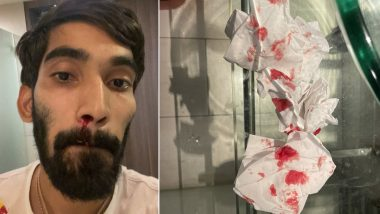 India's Kidambi Srikanth Left With Bloodied Nose After Multiple COVID-19 Tests in Bangkok