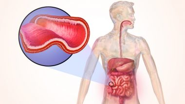 Crohn's Disease in Children: Novel Potential Therapy for The Inflammatory Bowel Disease Demonstrated By Researchers