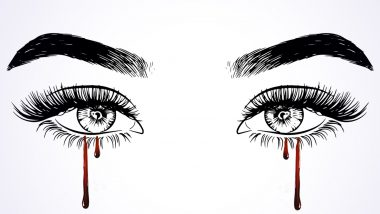 Bleeding Eyes During Periods: Woman Gets Tears of Blood During Menstruation Due to This Rare Condition! Know More About Ocular Vicarious Menstruation, Its Causes and Symptoms