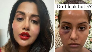 Raiza Wilson Shares Her Picture Post the Botched-Up Dermatological Procedure, Asks 'Do I Look Hot?'