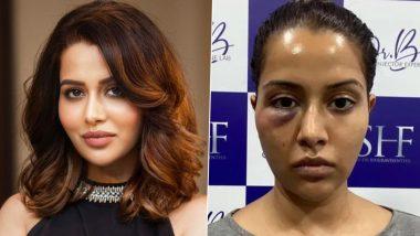 Raiza Wilson's Dermatologist Files a Defamation Case Against the Actress, Demands for Rs 5 Crore Compensation