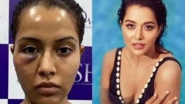 Raiza Wilson Sues Her Dermatologist For Rs 1 Crore for Allegedly Putting Her Life at Risk With a 'Wrongful Procedure'