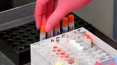 Iran Approves First Homegrown COVID-19 Vaccine COVIran Barekat