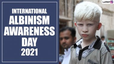 International Albinism Awareness Day 2021: 7 Facts About the Inherited Genetic Condition You Must Know About